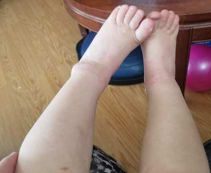 amplifei personal results babies legs2